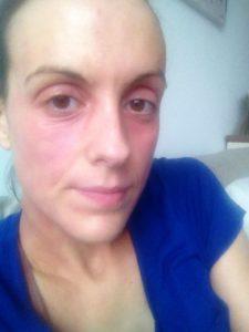 Eczema face